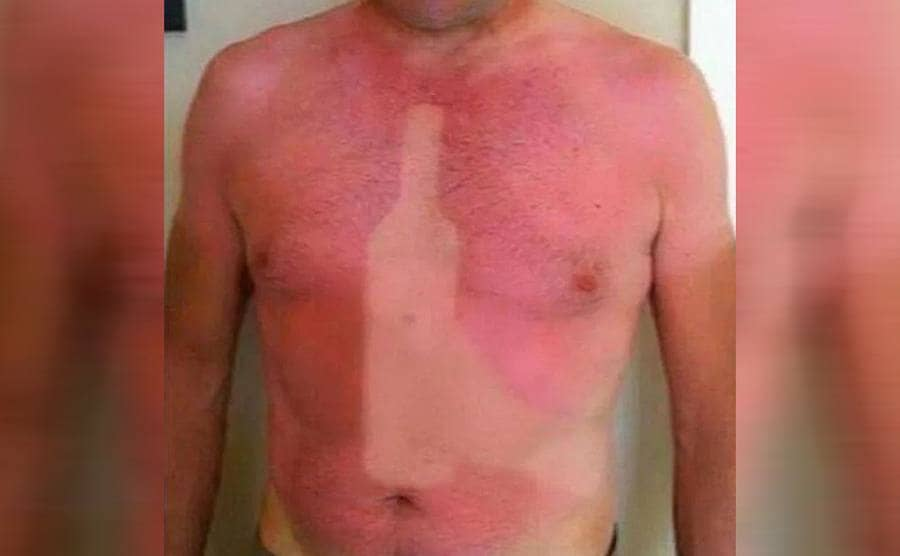 A man with a sunburn and a spot with no color shaped like a wine bottle with a person holding it